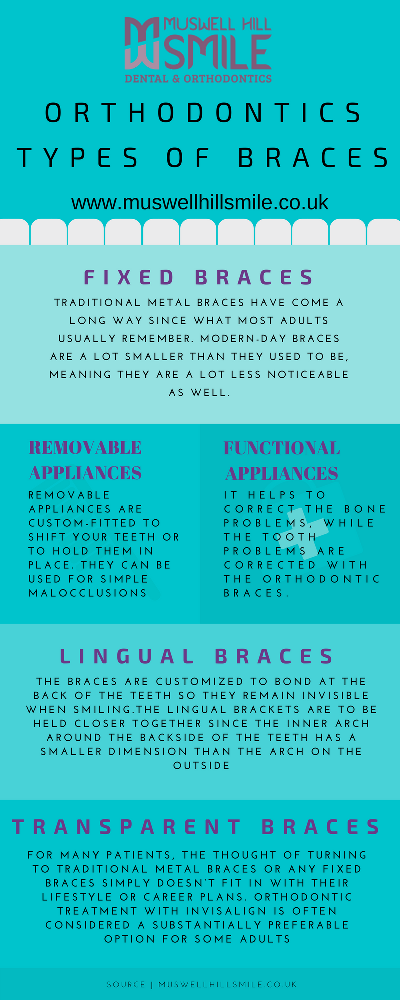 5 Types of Braces – Muswell Hill Smile